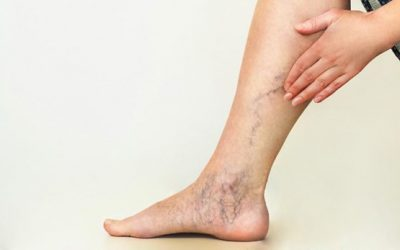 Banish Spider Veins With Sclerotherapy