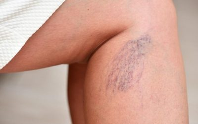 What_s Causing Your Spider Veins_