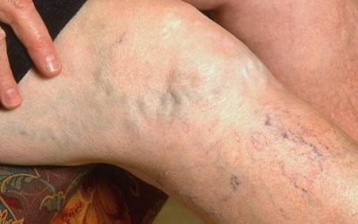 Which Varicose Vein Treatment is Right for You_