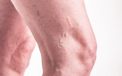 Your Varicose Veins May be More Than Just a Cosmetic Concern
